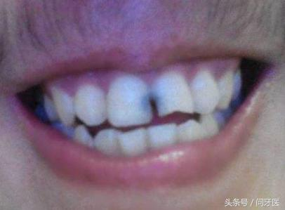 門牙縫為什麼會發黑? - 每日頭條