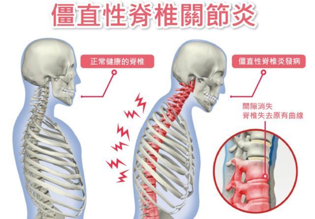 僵直性脊椎炎治療藥物效果有限,從日常保健開始預防吧! - 每日頭條