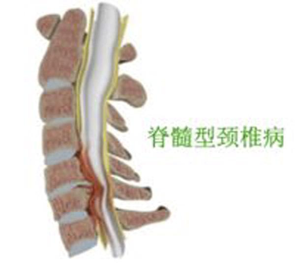 脊髓型頸椎病不手術行嗎? - 每日頭條