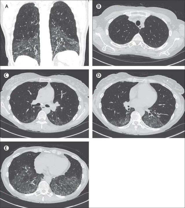 一文總結:系統性硬化癥相關間質性肺病的診斷和管理 | 臨床實戰 - 每日頭條