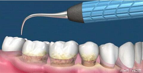洗牙到底會不會傷害牙齒,多久洗一次合適? - 每日頭條