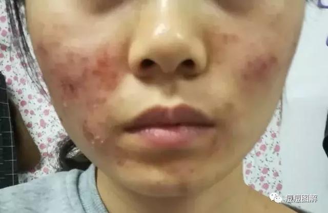 臉上長痘痘忍不住用手扣導致毀容,皮膚油膩還毛孔粗大該如何治療 - 每日頭條
