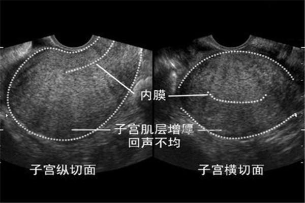 子宮腺肌病是一種什麼病?影響懷孕嗎? - 每日頭條