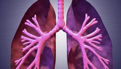 咳嗽、咳膿痰、反覆咯血。支氣管擴張讓人苦不堪言 - 每日頭條