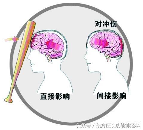 顱腦外傷搶救須關注傷後一小時的「黃金時段」 - 每日頭條