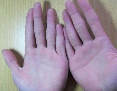 詳細分析:手掌紋路怎惡樣算斷掌?斷掌的蘊意好不好,看看就知道 - 每日頭條