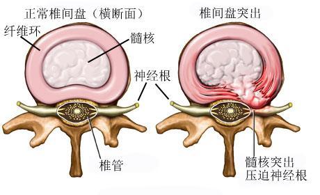 腰椎融合手術後康復注意事項 腰椎融合手術有後遺癥嗎? - 每日頭條