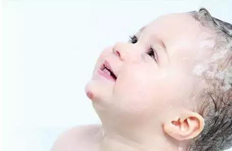 育兒寶典丨注意!孩子臉上的白斑不是因為蛔蟲。而是…… - 每日頭條
