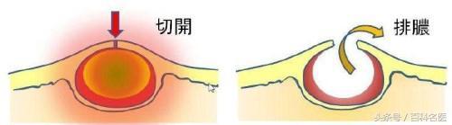 耳朵後面長了個硬包是怎麼回事?專家說:這或許是粉瘤! - 每日頭條