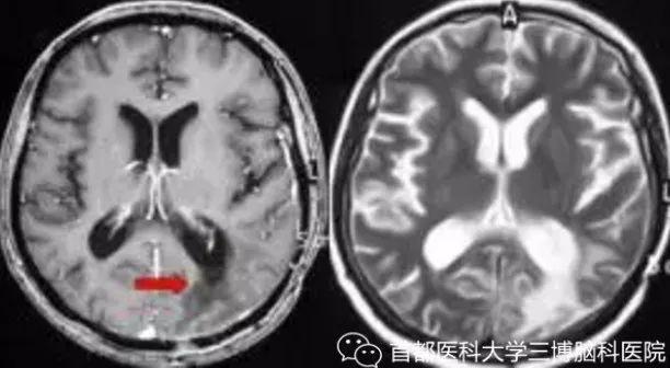 三分之一惡性腫瘤轉移腦部!最全腦轉移癌就醫指南了解一下…… - 每日頭條