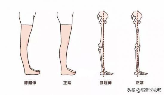 從坐,站,走,跑等姿勢中發現膝關節痛的潛在危險信號 - 每日頭條