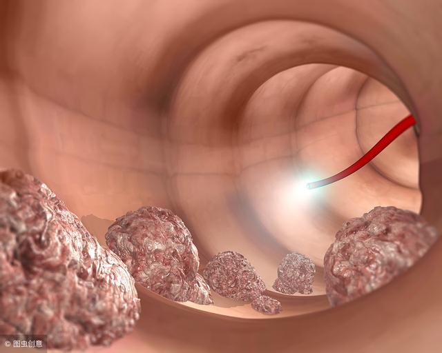 腸息肉是腸癌的「前身」!切除後飲食上做到這7點。恢復的更好 - 每日頭條