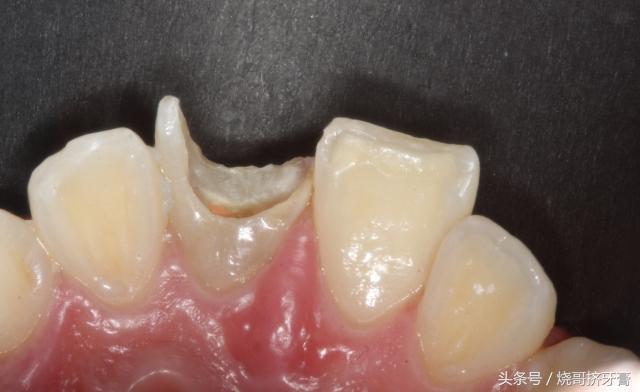 牙齒根部快爛了怎麼辦? - 每日頭條