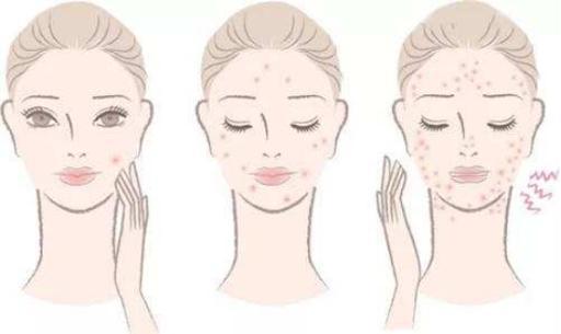 益生菌與健康:痤瘡、牛皮癬、酒糟鼻 - 每日頭條