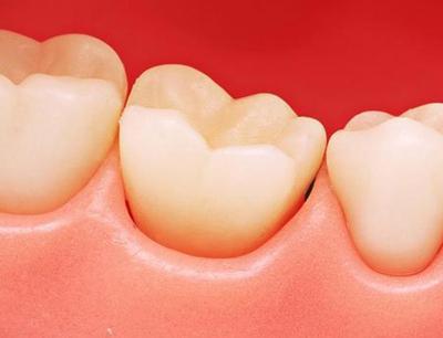 救救你的牙:牙齦萎縮不可逆?你該這麼辦! - 每日頭條