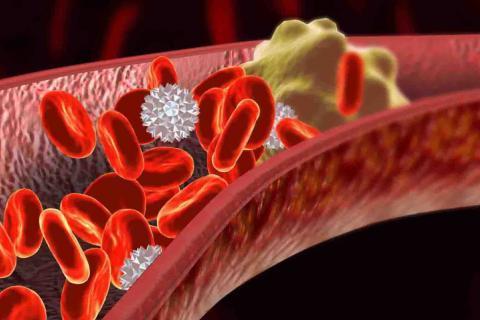 不是醫生也要知道的知識:癌癥患者靜脈血栓栓塞的防治 - 每日頭條