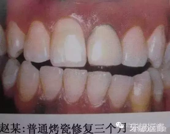 金屬鎳鉻合金烤瓷牙的壞處有哪些 - 每日頭條
