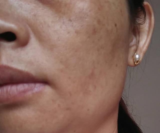 「內失調型黃褐斑」治癒案例。皮膚疾病研究者說出2個淡斑處方 - 每日頭條