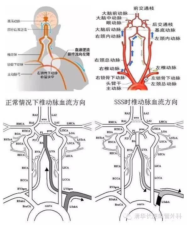 疏壅通塞 正道其昌 血管外科成功恢復鎖骨下動脈血流 - 每日頭條