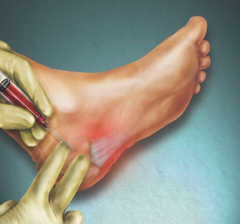 腳跟疼痛怎麼回事? - 每日頭條