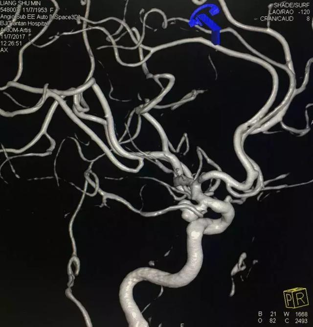 顱內動脈瘤栓塞攻略之微導管塑形 - 每日頭條