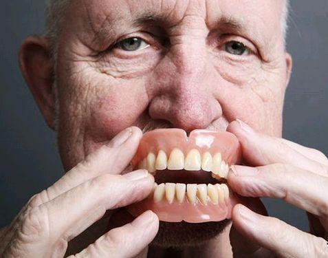 哪一種的假牙好 選擇假牙你需要知道下面的知識 - 每日頭條