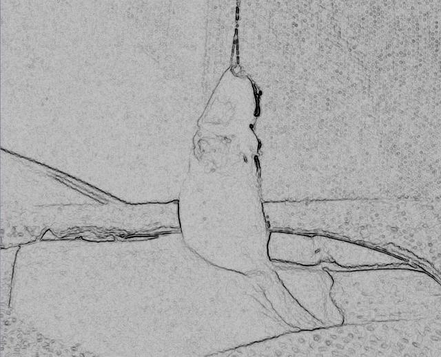 陰莖下彎矯正手術方法和考慮 - 每日頭條