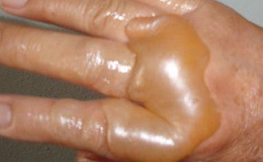 燙傷水泡千萬不能挑破 燙傷水泡怎麼處理好的快 - 每日頭條