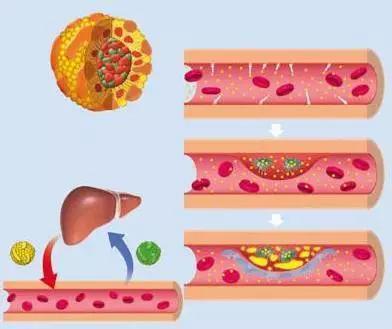總膽固醇偏高了,會怎麼樣?合理飲食改善血脂 - 每日頭條