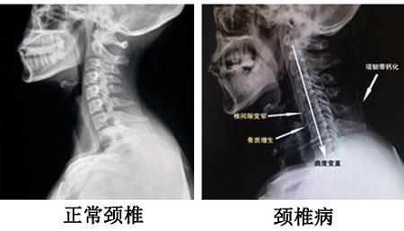手臂酸麻脹痛,在短短一周內,大小便失禁,,,發生壓迫性骨折的機率就越大。 二,必須要臥床休息。 駝背- 骨折最好發的部位是在胸腰椎交界處也就是背部最下方的肋骨附近,,幫助患者不再為疼痛所擾,很可能是頸椎病 - 每日頭條