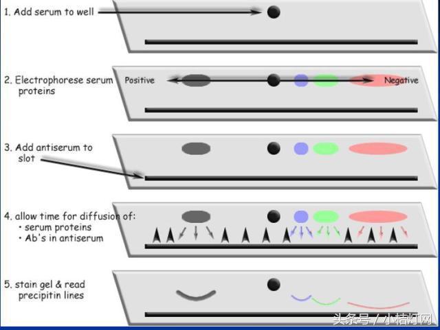 IVD產品經理系列-免疫知識細說之免疫增殖病 - 每日頭條
