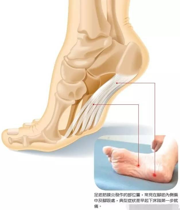 足底筋膜炎——這個小問題。竟然潛伏在80%的人身邊! - 每日頭條