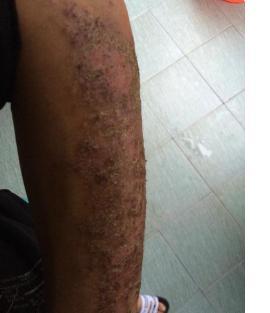 慢性濕疹並不可怕。一種蔬菜磨碎。用3周趕走3年濕疹不復發! - 每日頭條