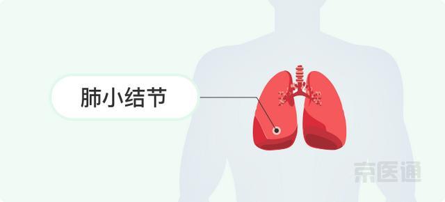 甲狀腺結節、肺小結節、乳腺結節。離癌有多遠? - 每日頭條