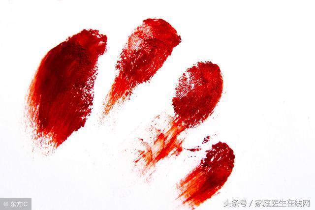 出現便血可能是患上什麼病?有4種可能性,需逐一排查 - 每日頭條