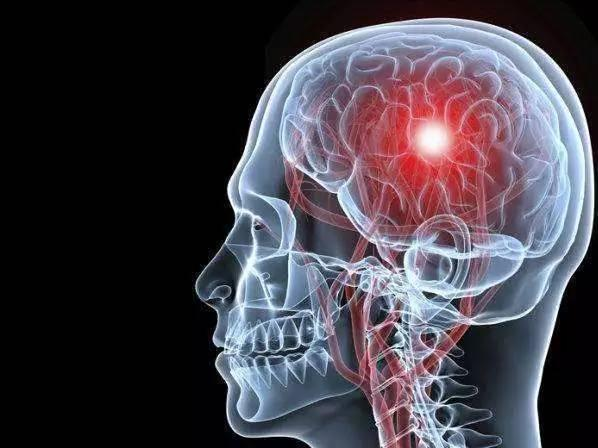 腦梗塞的3個徵兆,早預防,能救命,切莫忽視! - 每日頭條