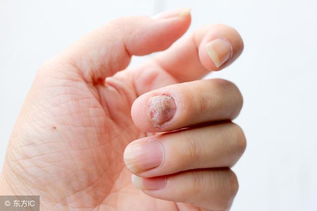 灰指甲二次發作?皮膚醫生:4個誤區是禍根。早知早好 - 每日頭條