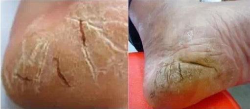 腳干腳裂怎麼治好?醫生吐露:這些小訣竅。讓你事半功倍 - 每日頭條