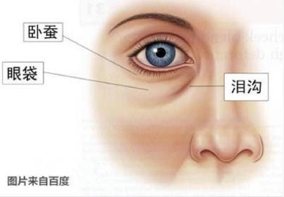再精緻的五官也抵抗不了眼袋的摧殘!5個去眼袋的方法。甩掉眼睛浮腫 - 每日頭條