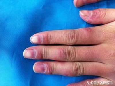 皮膚突然變黑 當心6種全身性疾病 - 每日頭條