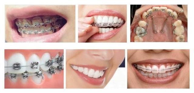 牙套種類這麼多。究竟哪款最適合你? - 每日頭條