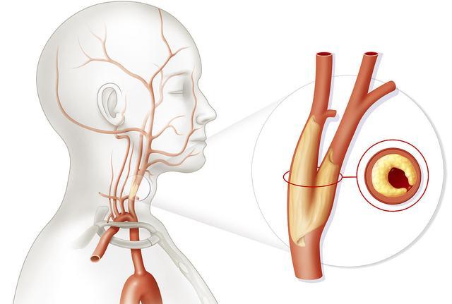 面對頸椎病。再沒有比這更簡單的治療方法了。但就是管用! - 每日頭條