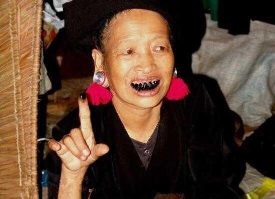 越南老太太愛吃檳榔,當牙齒壞死時,男人愛吃擯榔以牙齒黑為美 - 每日頭條