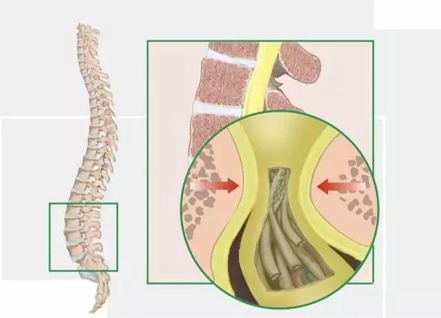 醫生。腰椎管狹窄形成的原因有哪些? - 每日頭條