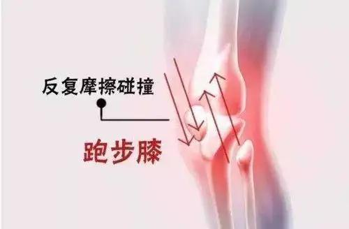 愛上跑步那麼久,您的膝蓋還好嗎? - 每日頭條