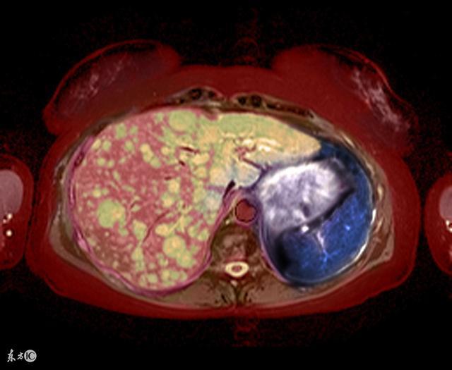 肝癌晚期死前癥狀的幾大表現 - 每日頭條