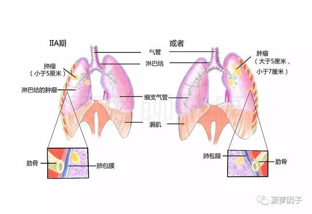 菠蘿聊肺癌|第二期:肺癌到底是如何分類的? - 每日頭條