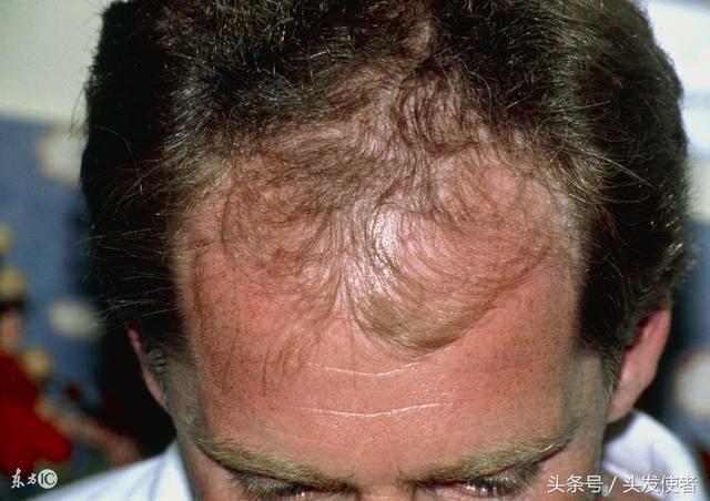 認清斑禿脫髮癥狀特點。治療脫髮不在困難! - 每日頭條