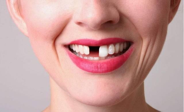 一顆「缺失牙」導致的蝴蝶效應 - 每日頭條