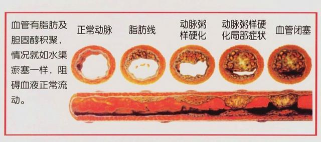 想要永不得心腦血管病。定期清理血管斑塊最關鍵 - 每日頭條